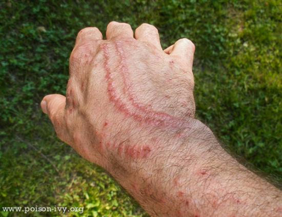 Skin Rash Hall of Fame   Page 9   The Poison Ivy  Poison Oak  Poison     Double Lines of Poison Ivy Rash