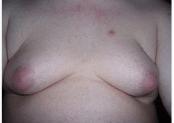 What is Gynecomastia?