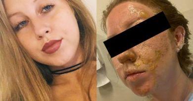 Mesero le quema el rostro a una turista en un bar de Cancún