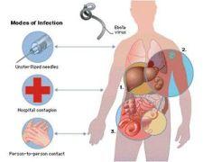 ibola virus