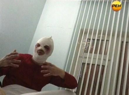 Sergei Filin, director del Teatro Bolshoi, en el hospital. Foto: AP