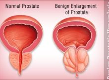 Prevent benign enlargement of prostate
