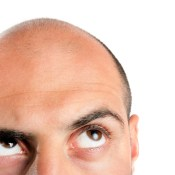 A New Study Supports PRP Having a Role in Treating Male Pattern Balding