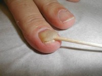Psoriasis can often cause the nail to come off