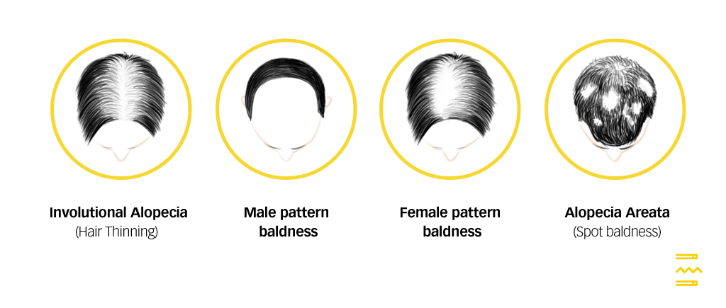 types of hair loss pulse tcm clinic