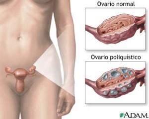 Eliminar quistes de ovario