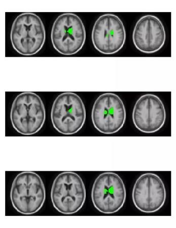 brain_image01