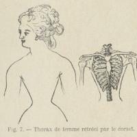 Début du XXème, et si on réglementait le port du corset ?
