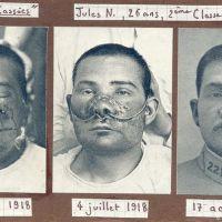 Gueules cassées, conséquences physiques de la Grande Guerre