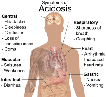 English: General symptoms of acidosis. (See al...