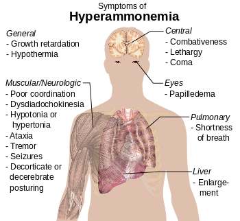 English: Main symptoms of hyperammonemia (See ...