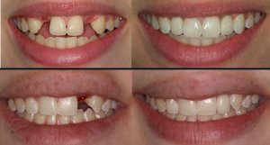 Dental Implant 03
