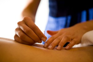 laura merie Acupuncture treatment