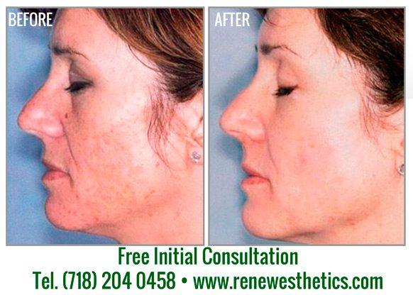 laser-pigmentation-removal