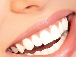 اسنان جميلة