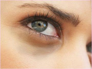 وصفة لتخلص من الهالات السوداء تحت العين