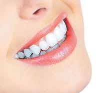 وصفة تبيض الاسنان