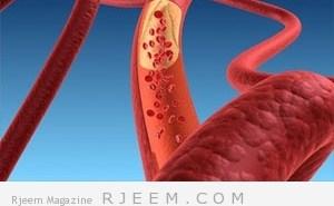 خفض مستويات الكوليستيرول