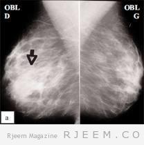 التصوير الشعاعي للثدي  :كيف تسير الأمور؟
