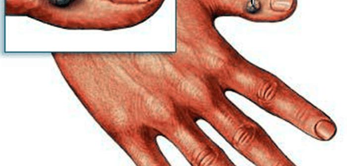 اعراض سرطان الجلد وطريقة الحماية منه