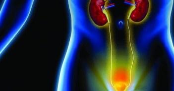 التهاب المسالك البولية