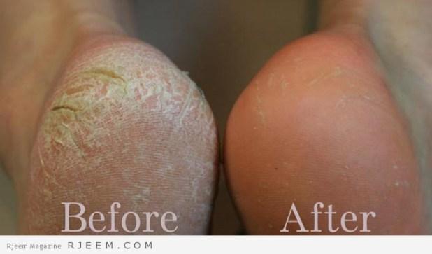 علاج تشقق القدمين - التخلص من مشكلة تشقق القدم