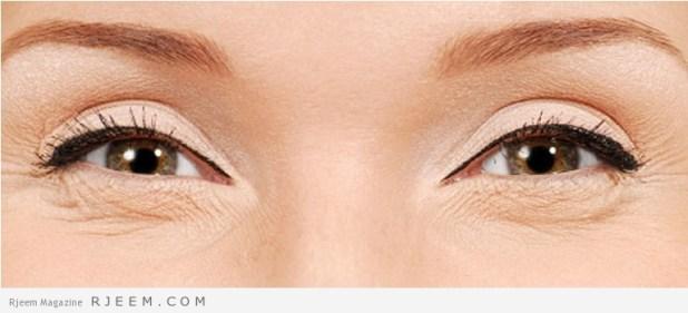 التخلص من تجاعيد العين