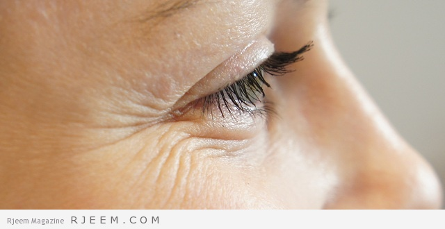 علاج الخطوط تحت العين - كيفية التخلص من تجاعيد حول العين