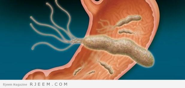 جرثومه المعدة - اسباب واعراض جرثومة المعدة وطرق علاجها