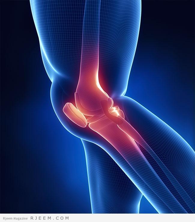 خشونة المفاصل - اعراض وعلاج خشونة المفاصل