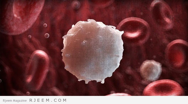 ارتفاع كريات الدم البيضاء - اسباب وعلاج كثرة كريات الدم البيضاء