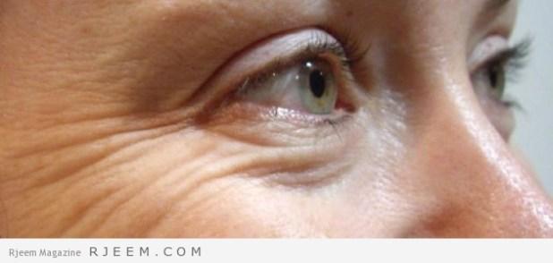 التخلص من تجاعيد الوجه - خلطات طبيعية لمحاربة التجاعيد