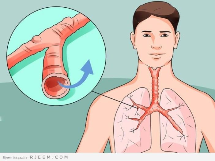12 طريقة طبيعية لعلاج السعال