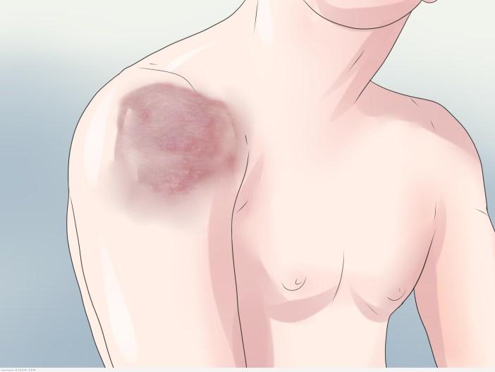 اسباب وعلاج الصدفية