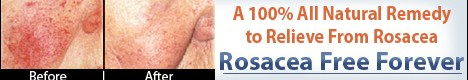 Rosacea Free Forever