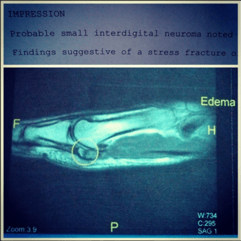 A Stress Fracture or a Bone Bruise?