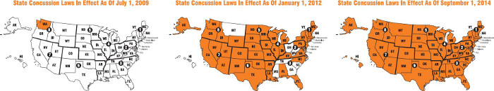 Concussion laws