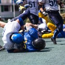 Concussion detection