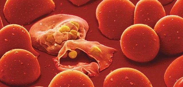 Resultado de imagen de malaria