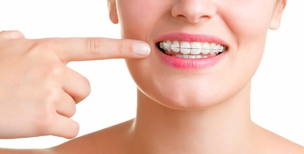 ortodoncia no tiene edad