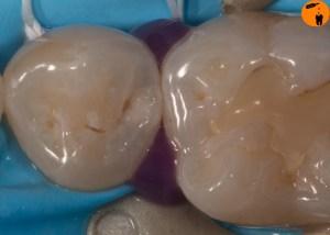Genfer Konzept noninvasive Restauration - phosphorsäure