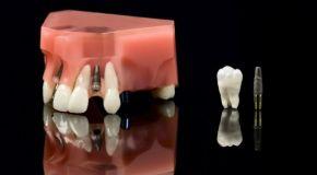 Zubni implantati, umjetni korijen zuba