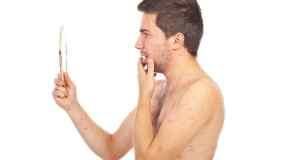 Zašto imamo akne
