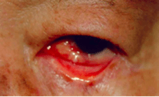 Ocular Sparganosis: Nodules in and around the eye. http://web.stanford.edu/group/parasites/ParaSites2009/CooperLoyd_Sparganosis/CooperLoyd_Sparganosis.html