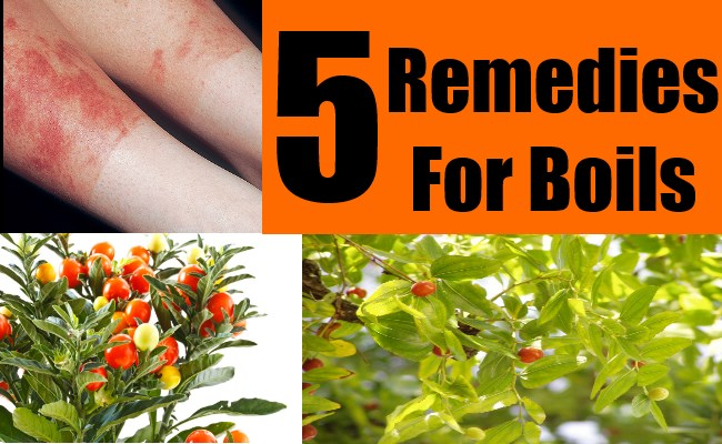 5 Remedies For Boils