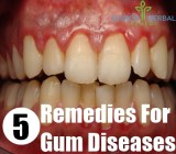 5 Remedies For Gum Diseases