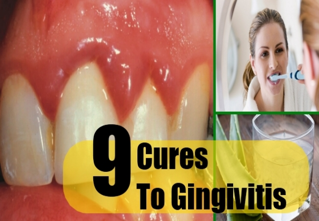Top 9 Cures To Gingivitis