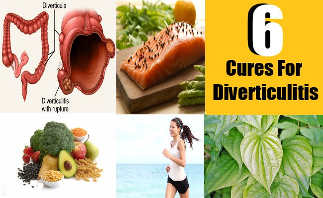 6 Cures For Diverticulitis