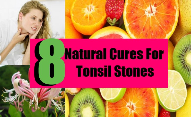 8 Natural Cures For Tonsil Stones