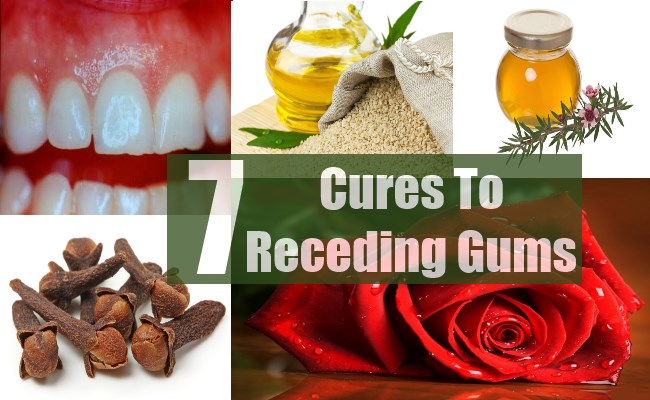 Top 7 Cures To Receding Gums